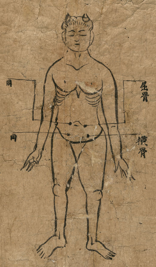 Chart of Moxibustion Methods.